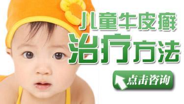 儿童牛皮癣皮肤受损后护理方法有哪些