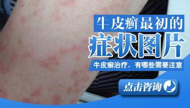 牛皮癣患者发病初期的症状